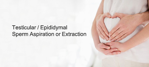 Testicular Epididymal Sperm Aspiration Treatment in Bangalore